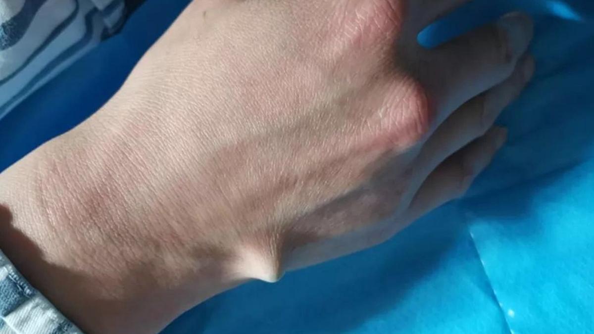 Dùng chiếc đũa để mở nắp chai bia, người đàn ông ở Trung Quốc bị đũa cắm sâu suýt đâm xuyên qua bàn tay